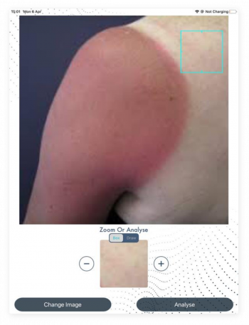 Diagnose skin ailments right then and there